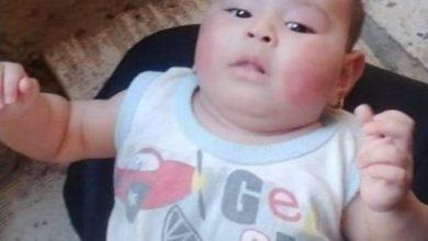 """Photo of """" لأنها أنثى"""" أب يتسبب بكسر يد وقدم طفلته ذات 4شهور"""