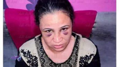 Photo of زوجه عن زوجها .. حبسني وعذبني 4 ايام للتنازل عن حقوقي