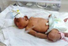 Photo of إهمال طفل أدي لوفاتة بالمياه المغلية