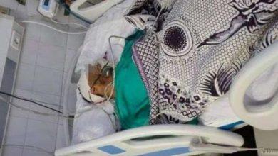 Photo of فريق طبي ينقذ شاب من الموت بميت غمر